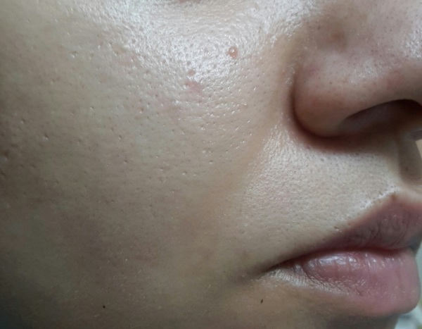 bare moisturized face. you can easily see the giant open pores!