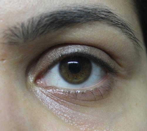 Bare Eye! darkest pigmentation is in the inner corners.